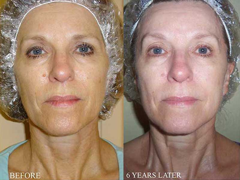 Un-retouched photo before and after microcurrent treatment